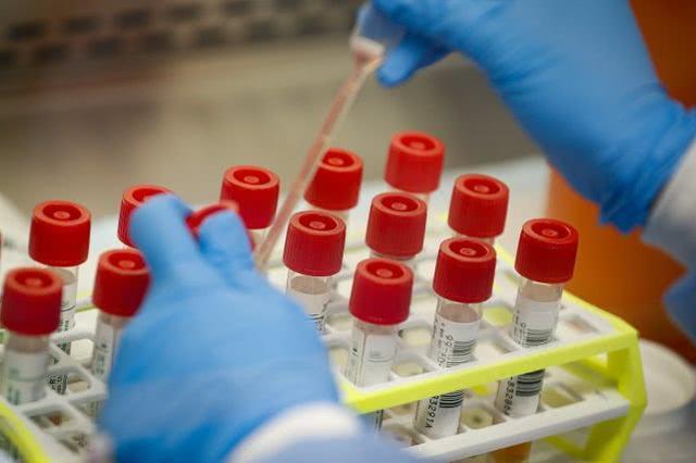意大利23岁新冠感染者入院不久症状消失,57天后检测仍为阳性  第2张