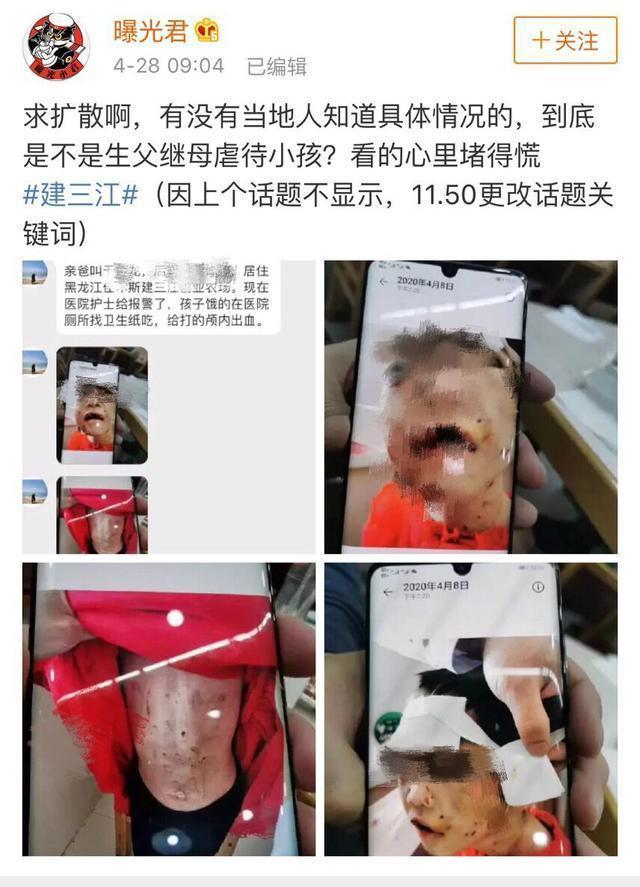 哈尔滨市儿童医院:被虐打女童有生命危险仍昏迷,全院会诊中  第1张