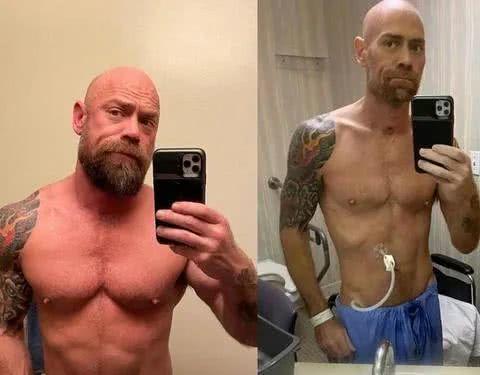英国壮男感柒新冠病毒后体重减轻45斤