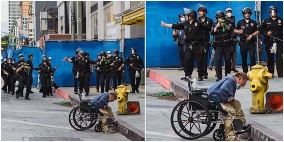 令人震惊!美国流浪汉遭公安局橡皮子弹打中 一脸是血