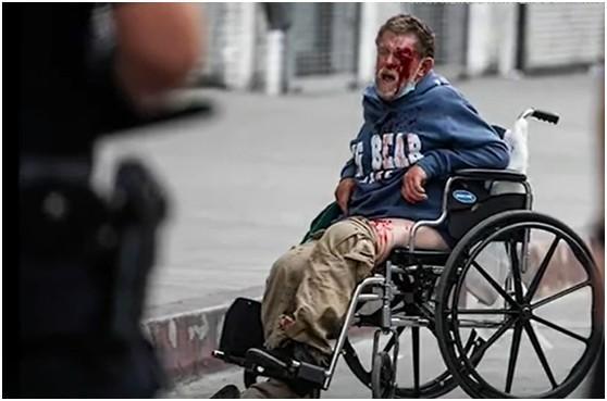 令人震惊!美国流浪汉遭公安局橡皮子弹打中 一脸是血  第2张