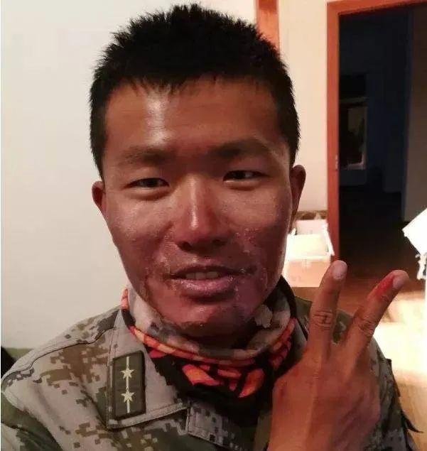 心痛!大家边防战士的脸如何晒干那样?为什么不抹防晒乳?  第2张