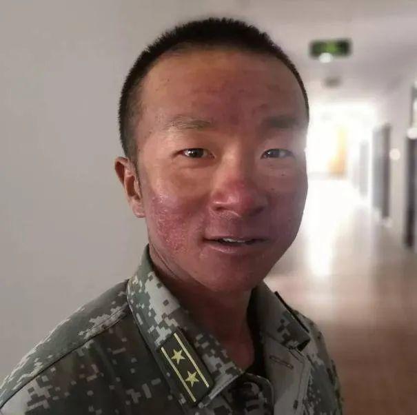 心痛!大家边防战士的脸如何晒干那样?为什么不抹防晒乳?  第4张