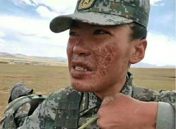 心痛!大家边防战士的脸如何晒干那样?为什么不抹防晒乳?  第3张