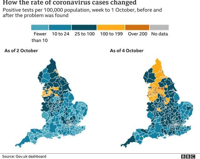 英国大约有16000例新冠肺炎病例没有被报道,英国媒体发现原因是这样的  第4张