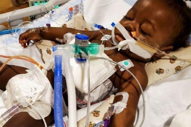 """""""这是一个完全的奇迹!""""美国纽约的一名婴儿幸免于新生儿肺炎和肝移植。"""