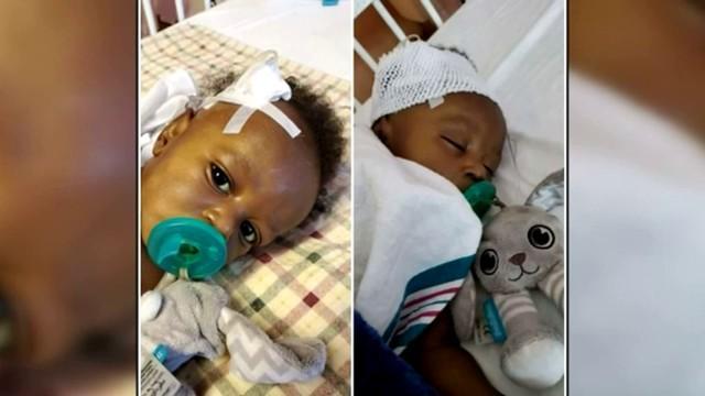 """""""这是一个完全的奇迹!""""美国纽约的一名婴儿幸免于新生儿肺炎和肝移植。  第3张"""